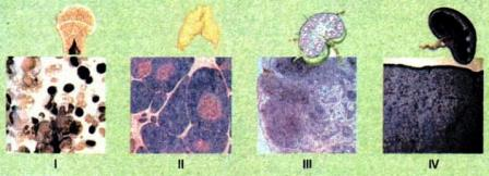 Органи імунної системи